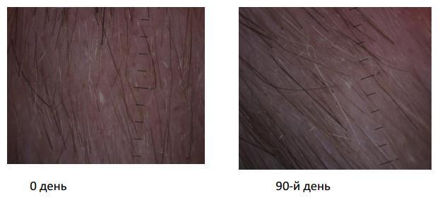 Опыт применения препаратов линии HAIR GENESIS в топической терапии пациентов с различными видами алопеции