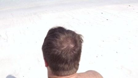 Голова с залысиной на макушке до обаработки пудрой Kmax.jpg
